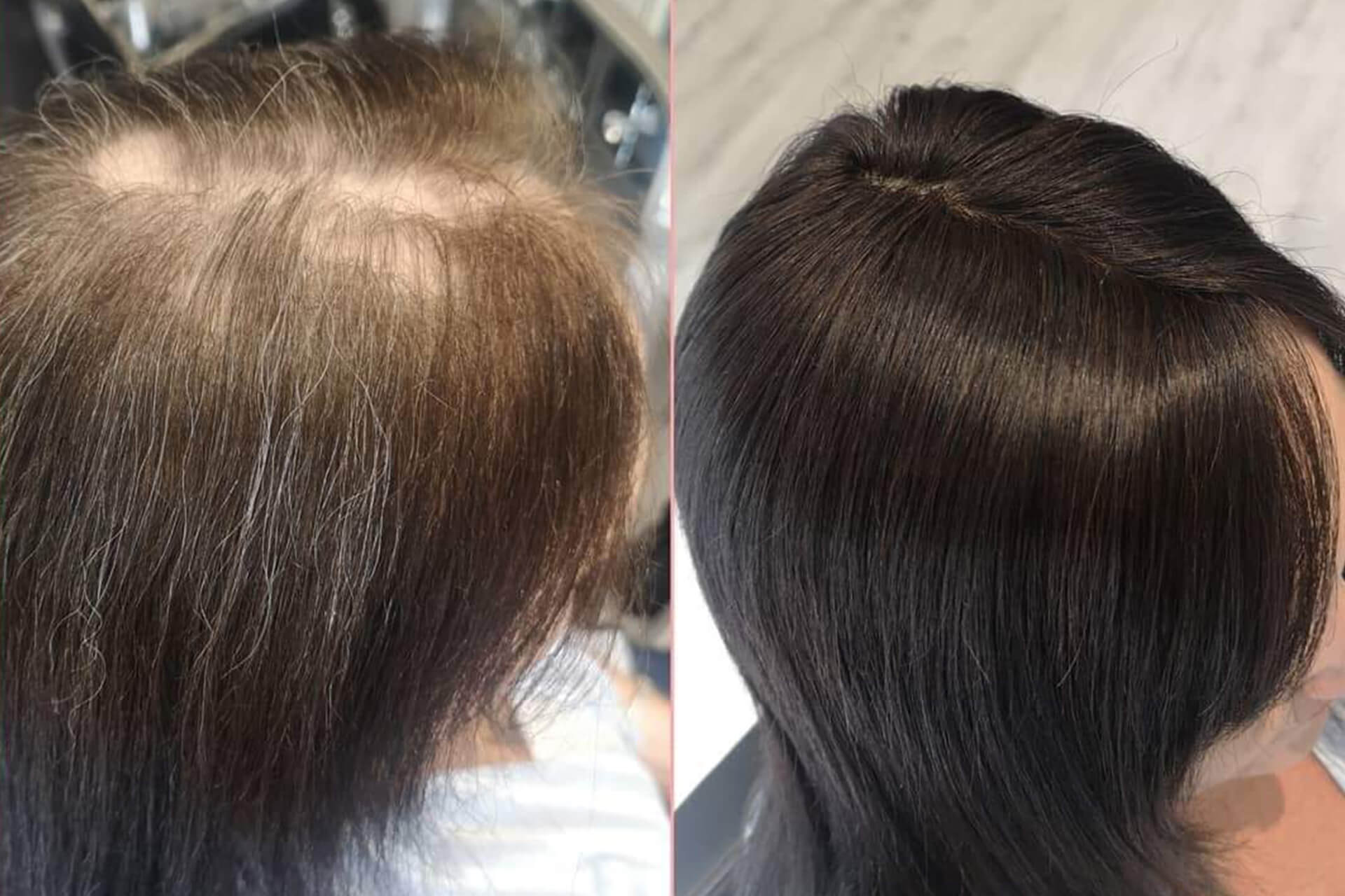 Hair Loss Integration Training 3