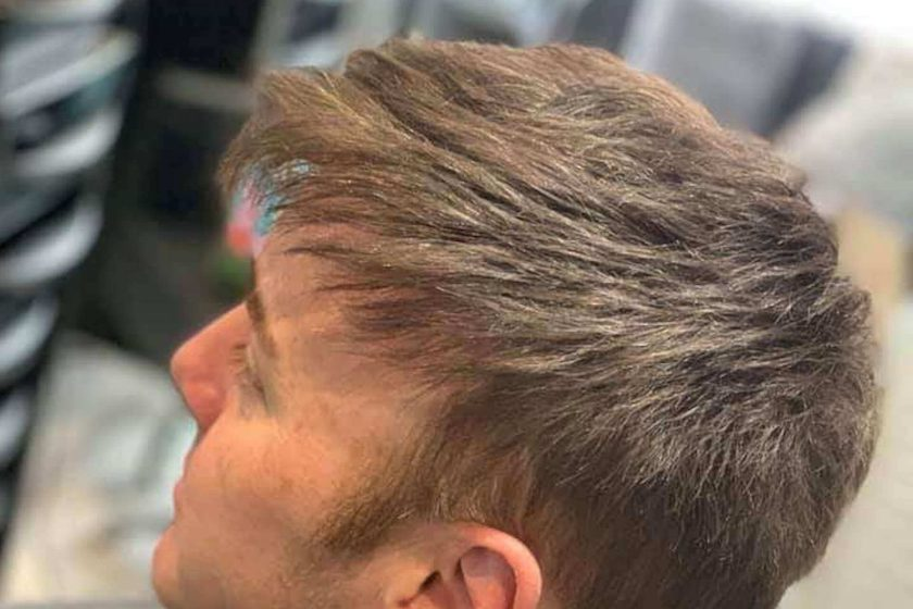 Male Hair Replacement