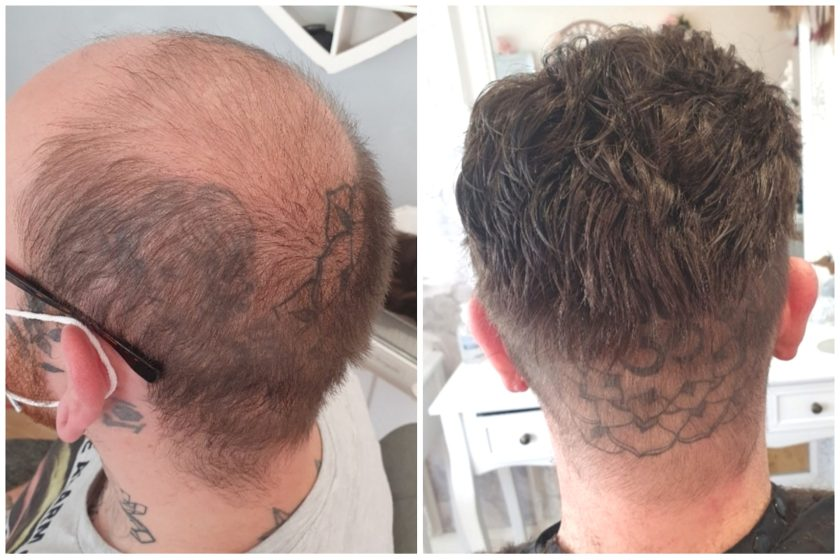Hair Replacement System Male Toupee